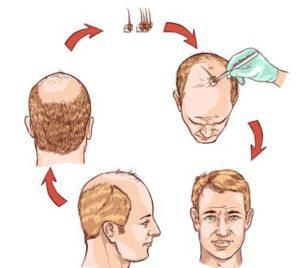 treatment process