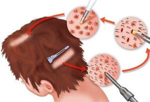 unlimitied hair transplant